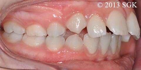 Classe II dentaire
