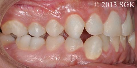 Dentale Klasse III