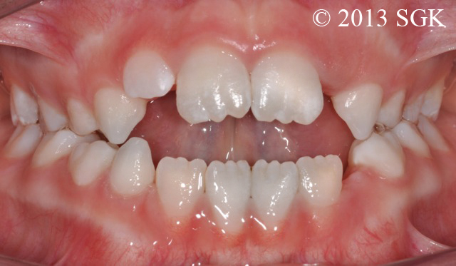 Béance dentaire antérieure